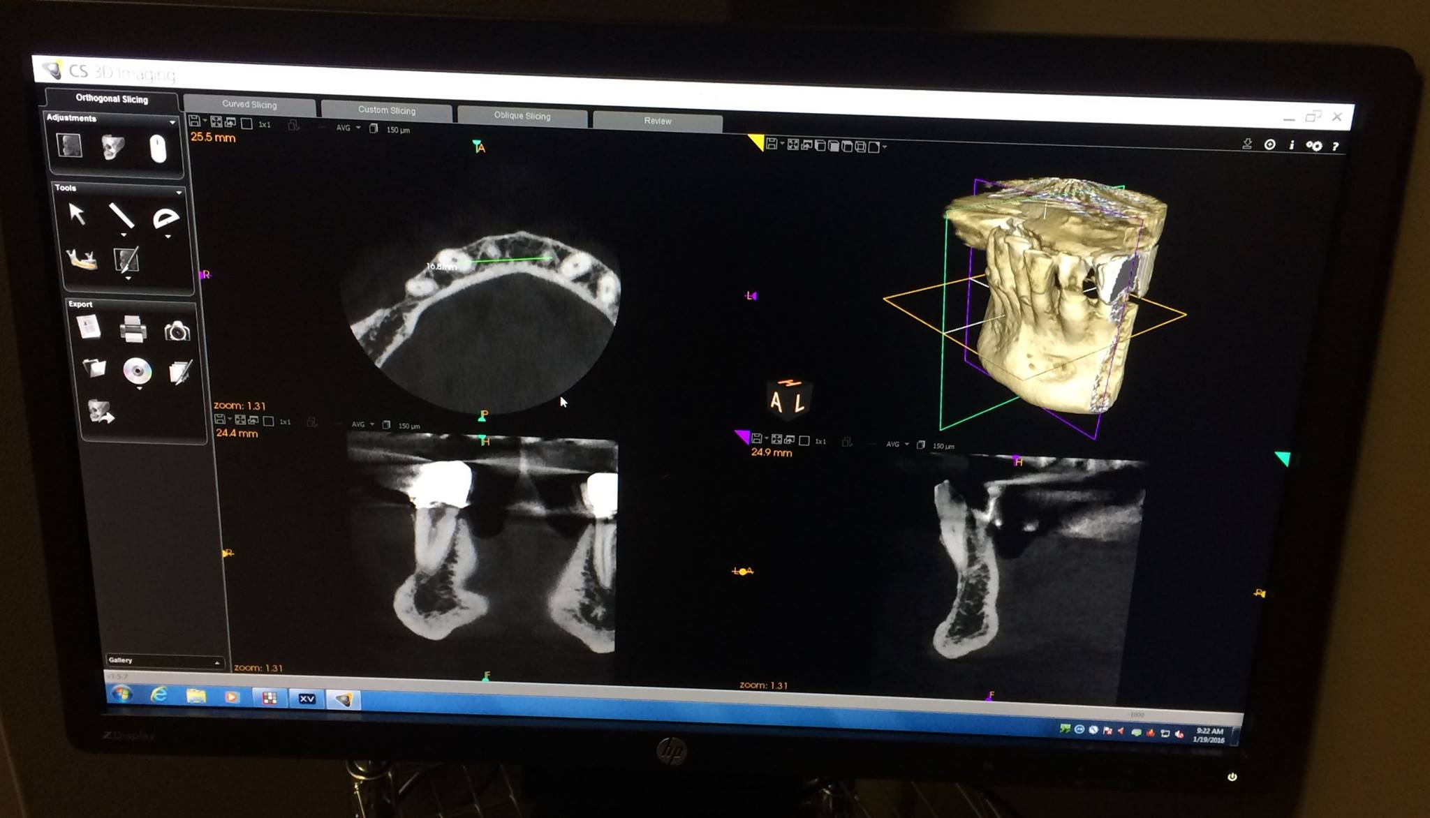 3D Dental Cone Beam CT Scanner Usage in Pittsburgh, PA